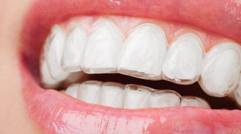 Flotte og regelmæssige tænder med Invisalign